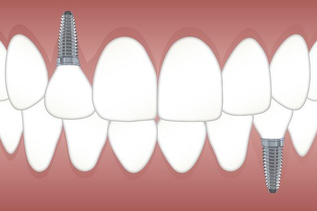 השתלת שיניים הגיע הזמן שלכם
